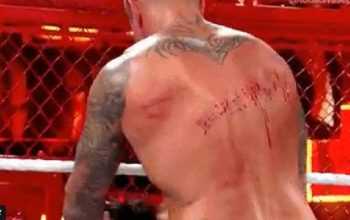 orton bloody back
