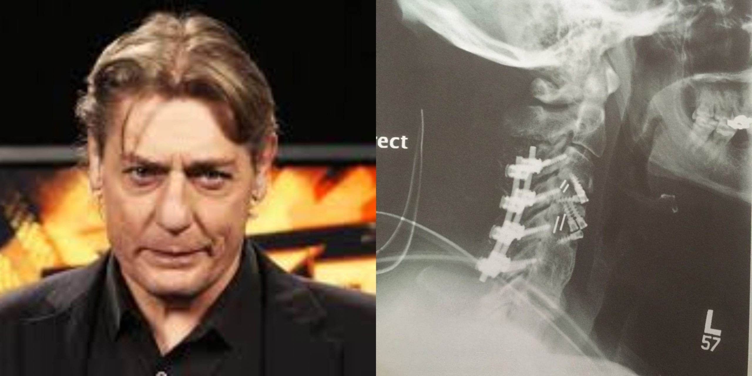 william regal neck