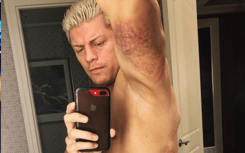 cody-bruises