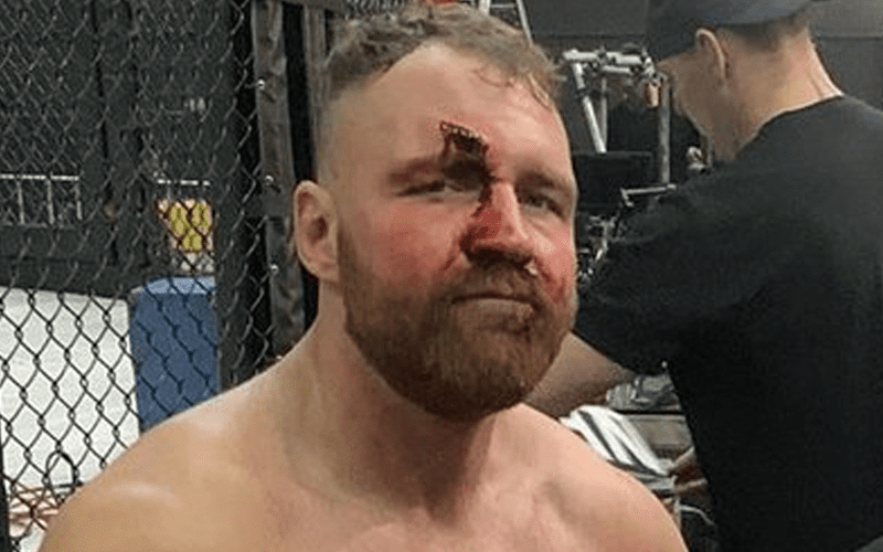 moxley-bloody-face