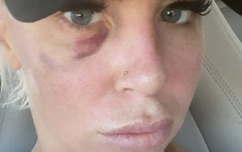 Dana Brooke Shows Off Bruised Face Following Match With Reckoning On WWE RAW